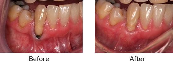 Gum Grafts   Brooklyn Periodontics & Implant Dentistry